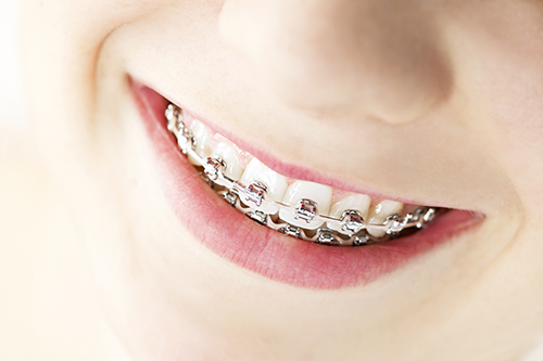 Dental Braces in Hanover Park, IL