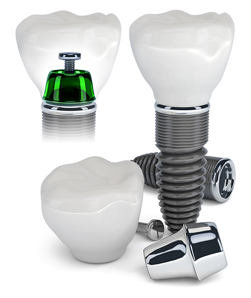 Dental Implants in Roselle, IL