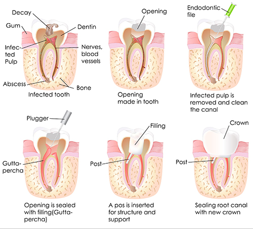 Root Canal Therapy in Hanover Park, IL